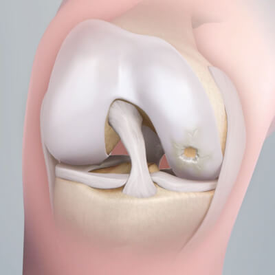 1fb649c286 Articular cartilage can be damaged in a number of ways